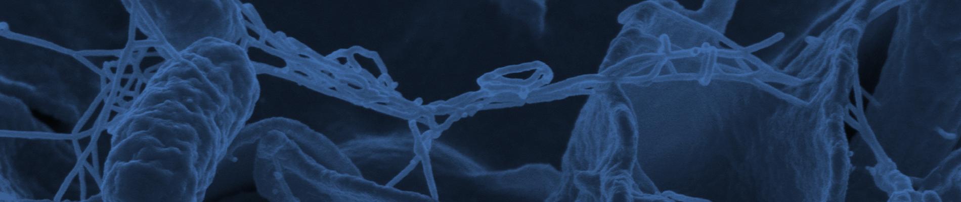 Salmonella in Liquid Egg PT Program (E01)